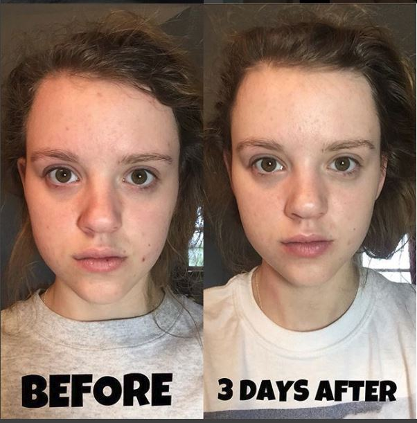 Acne Treatment which are affordable and have a 95% success rate